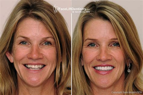 A Facelift For Your Teeth by Veneers And Cosmetic Dentistry Vs Lift Dentistry