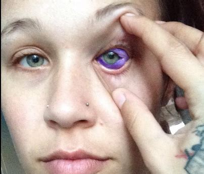 blind has tattoos all model goes blind after tattooing eyeball warns others of
