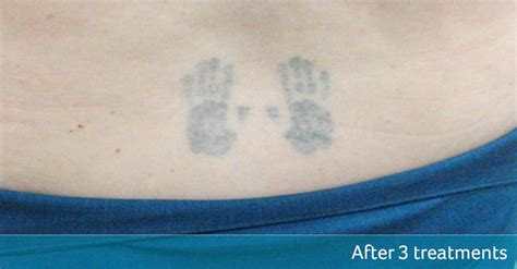 back tattoo removal lower back removal avalon laser clinic