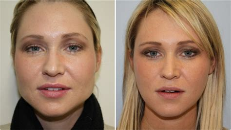 does a chubby face empthasize a forehead jawline gummy smile dr michael miroshnik