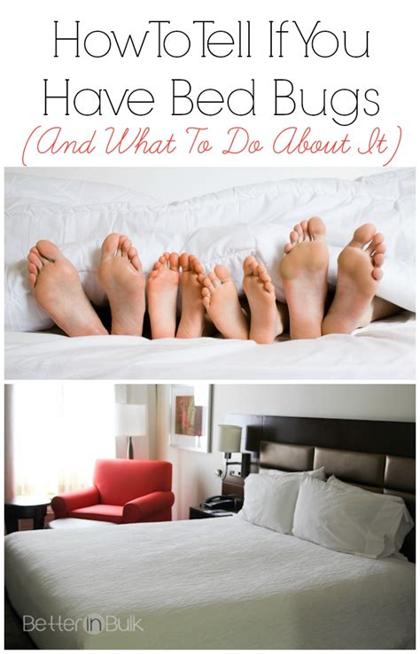 how do you if you bed bug bites how to tell if you have bed bug bites 28 images how do