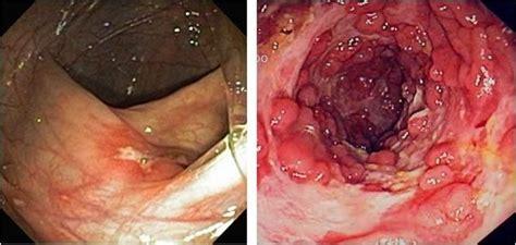 Crohn S Stool by How To If I Crohn S Disease