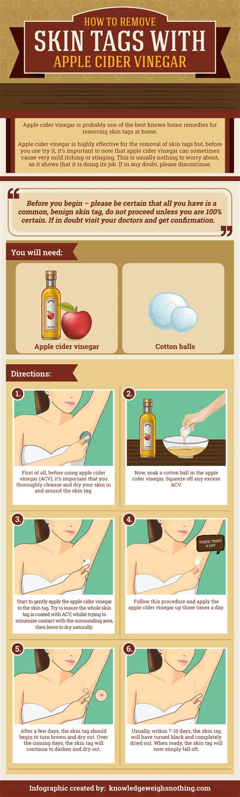how to remove skin tags at home with acv see the
