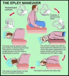home epley maneuver how to do the dix hallpike maneuver benign paroxysmal