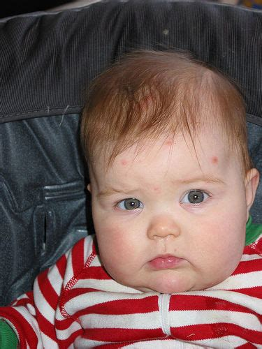 child mild what to do when you think your child has chicken pox