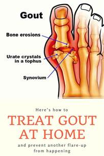 best 20 gout remedies ideas on uric acid