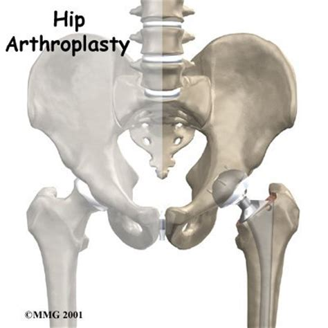 hip replacement hip replacement eorthopod