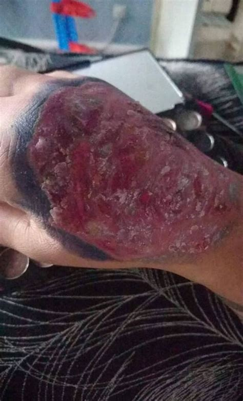 new tattoo peeling s skin starts peeling after getting new