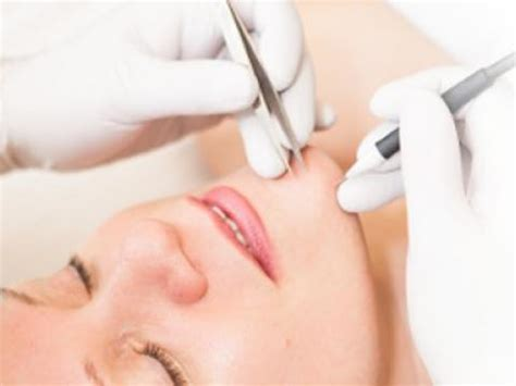 electrolysis clinique de beaut 233