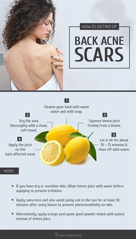 1000 ideas about lighten skin naturally on