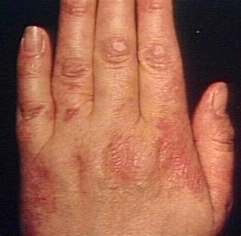 Hiv Rash On Fingers Pictures