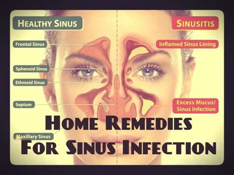 home remedies for sinus infection sinus