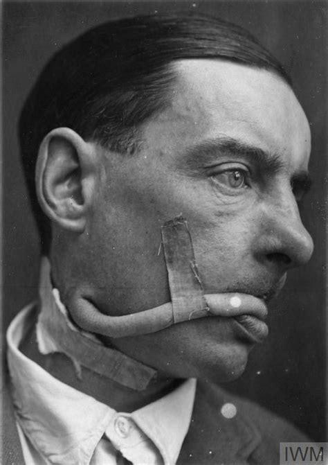 work  major harold gillies   field  plastic surgery    world war