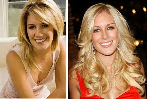 Heidi Montag Plastic Surgery by Heidi Montag And Publicly Documented Plastic Surgery