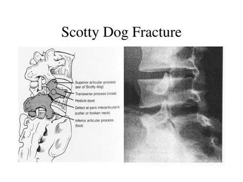scotty fracture ppt spondylolysis and spondylolisthesis powerpoint presentation id 2724335