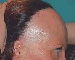 frontal fibrosing alopecia treatment diagnosis and treatment of frontal fibrosing alopecia