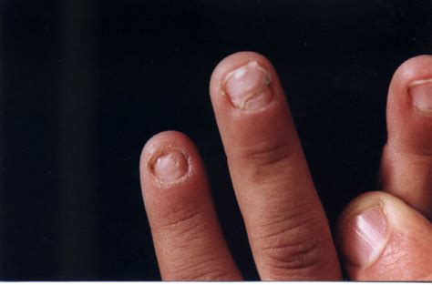 nail separating from nail bed nails separating from nail bed beautify themselves with sweet nails