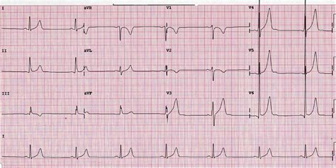 normal pulse what s a normal rate