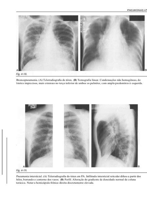 radiologia-pratica-para-o-estudante-de-medicina