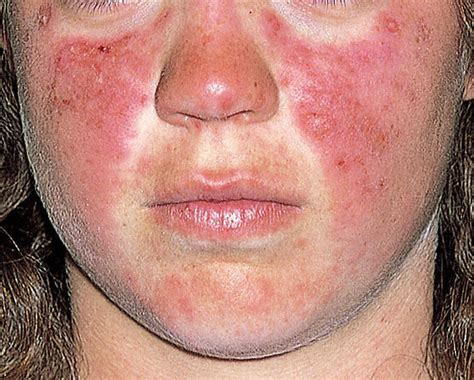 lupus rash pictures symptoms causes treatment