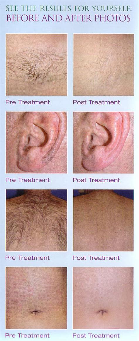 laser hair removal galway elysium day spa laser clinic laser hair removal from contours day spa