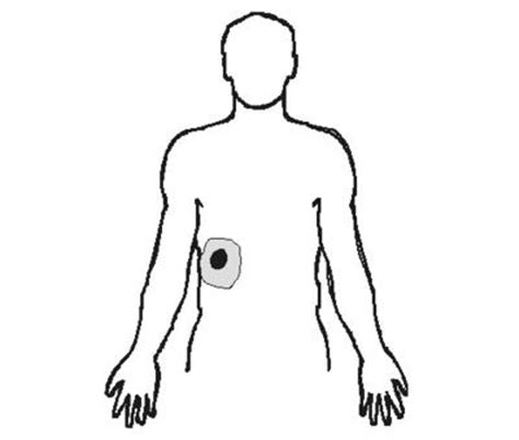 Referred Shoulder After C Section by Abdominal Surgery Referred Shoulder After Abdominal