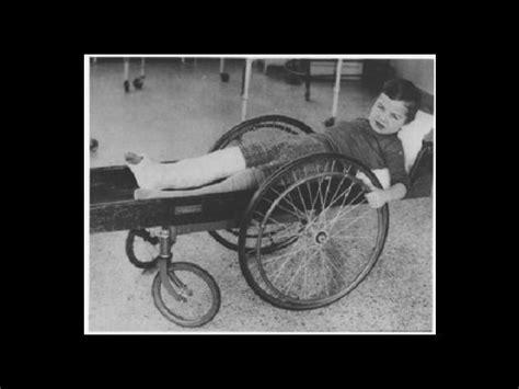 imagenes historicas escalofriantes 161 escalofriantes fotos hist 243 ricas sobre la medicina del