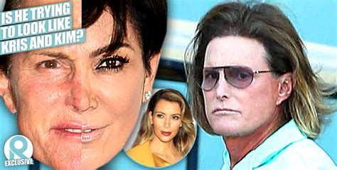 did bruce jenner have hair plugs bruce jenner s transformation continues star had hair