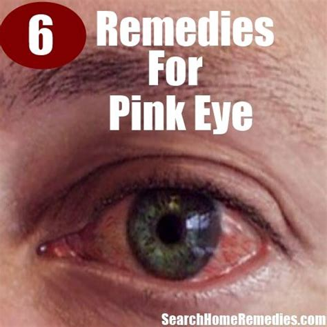 6 home remedies for pink eye getting it together