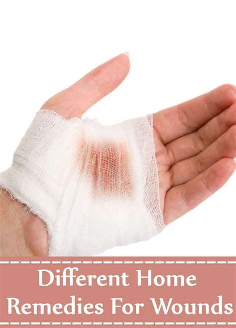 13 different home remedies for wounds search home remedy