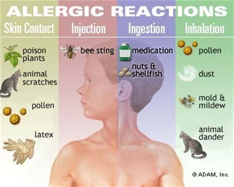 symptoms of allergies allergies symptoms diagnosis treatment of allergies ny times health information