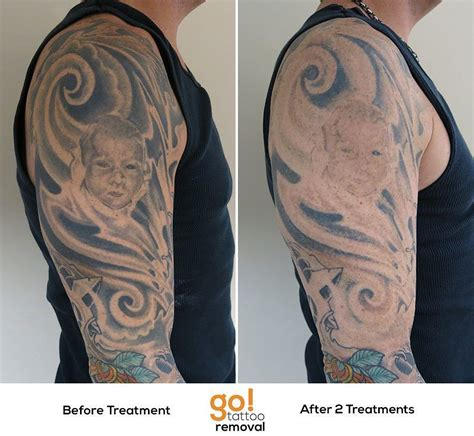 full sleeve tattoo removal this large half sleeve wasn t matching the lower half of