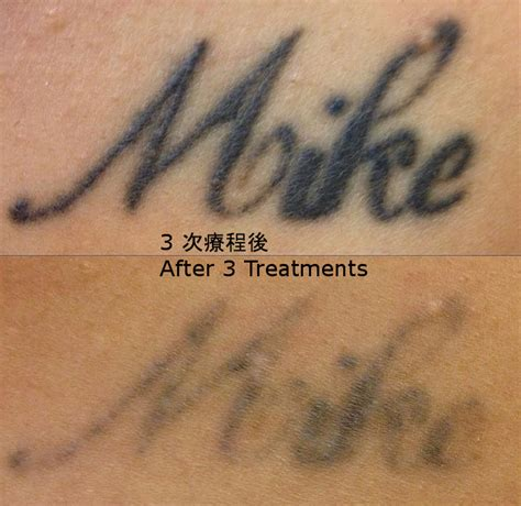 tattoo cost calculator skinlab laser removal hong kong 香港激光洗紋身中心
