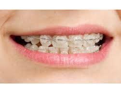 apparecchio denti interno costi prosedur pemasangan kawat gigi hasbi htc