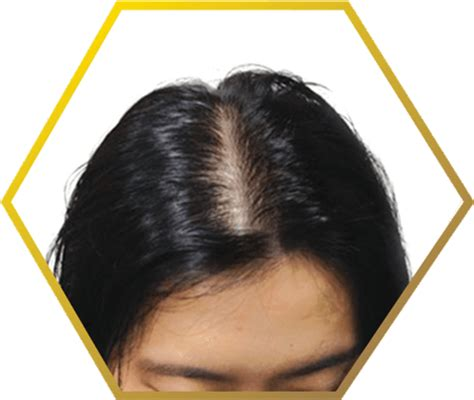 the female pattern hair loss review of pathogenesis and diagnosis hair loss hair fall problems jonsson protein sg