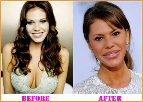 Nikki Cox Before And After Plastic Surgery | nikki cox plastic surgery gone wrong before and after