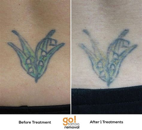 lower back tattoo removal 728 best removal in progress images on