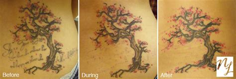 can you remove a new tattoo before after photos new look laser removal