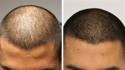 hairline tattoo adding density hairline ink