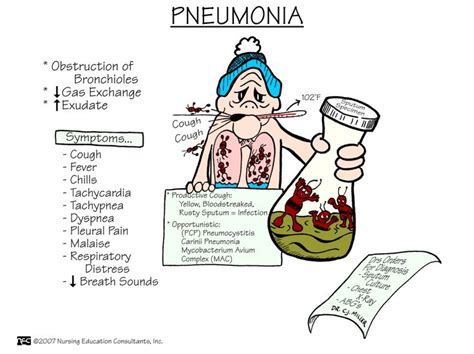 Can Detoxing Quickly Cause Pneumonia by 17 Best Images About Asthma On Respiratory