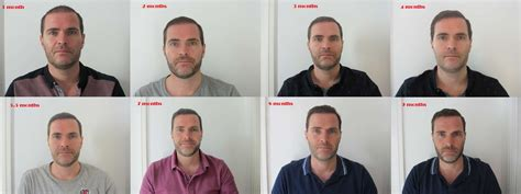 post hair transplant timeline my progress month by month timeline in pictures uk hair