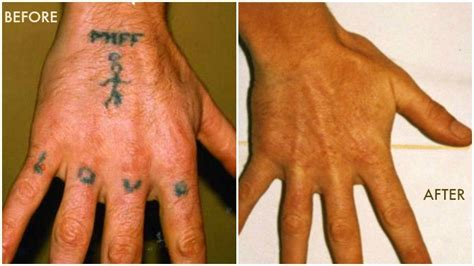 easiest way to remove tattoo laser removal best way to get rid of your