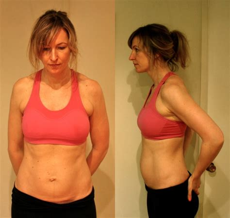 diastasis recti a of quot tummy quot today s parent