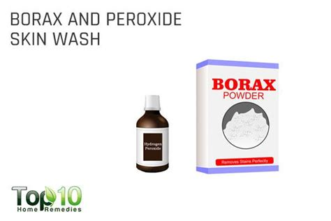 is borax safe for dogs home remedies to deal with your s itchy skin top 10 home remedies