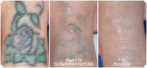 q switch laser tattoo removal picosure vs q switch the skiny