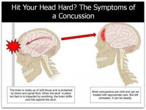 hit your concussion symptoms and care