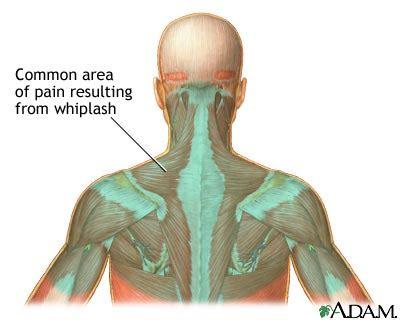 nudo muscular espalda whiplash