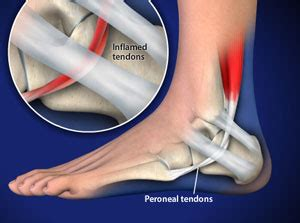 Booragoon Western Australia Common Foot And Ankle Issues