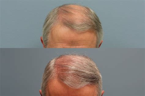 hair transplant stories and patient testimonials hair restoration success stories hair restoration