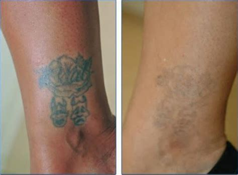 can you remove tattoos at home removal how to remove tattoos at home